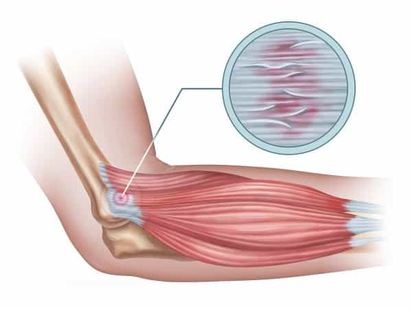 Cure for Tennis Elbow